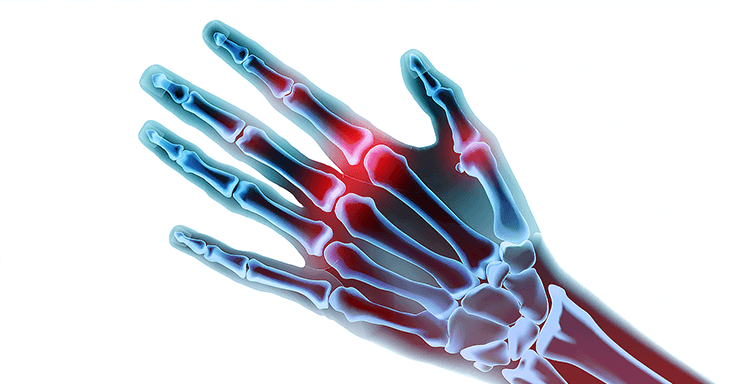 arthritis symptoms, arthritis causes, arthritis treatment